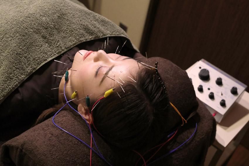 50本の鍼に特殊な電気を流す美容鍼コース